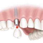zobni vsadki postopek