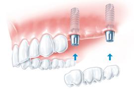 Cena zobnih impantatov