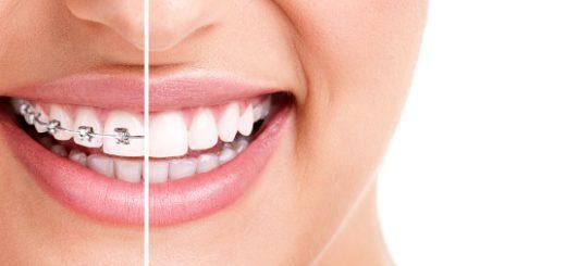 Čas nošenja fiksnega zobnega aprata