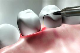 družinski zobozdravniki
