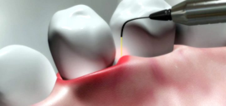 parodontoza zdravljenje