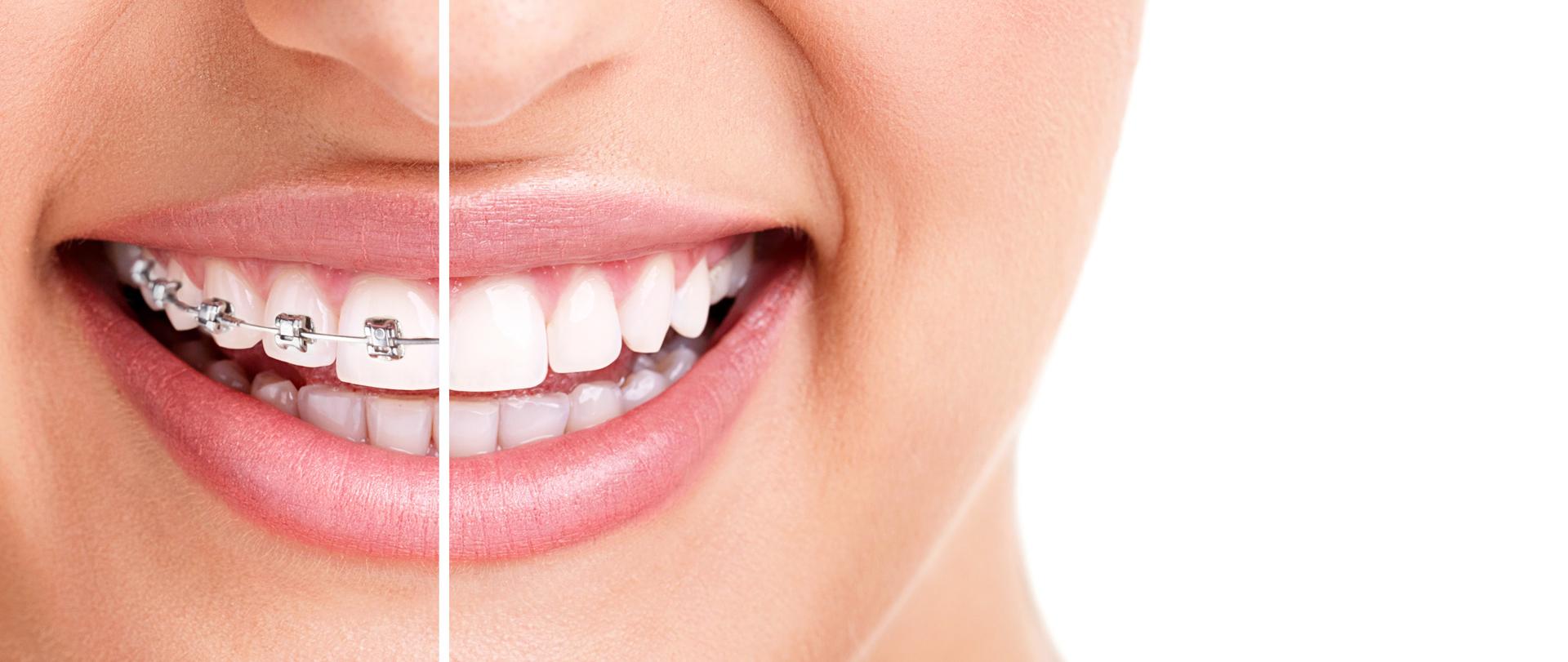 Lingvalni zobni aparat