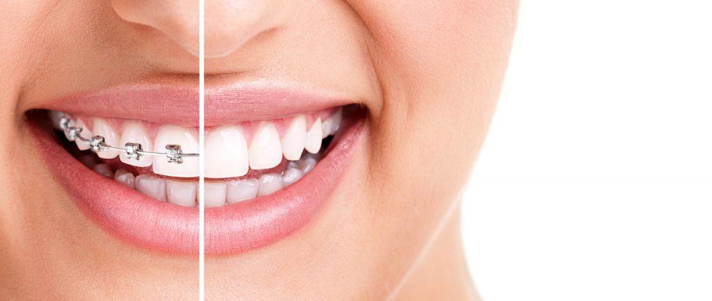 Ortodont ljubljana