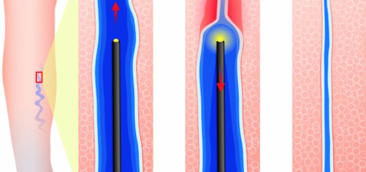 Zdravljenje krčnih žil