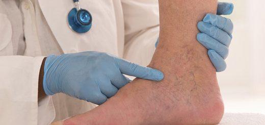 Krčne žile - pregled